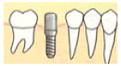 インプラント植立の手術