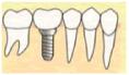 人口の歯の取り付け